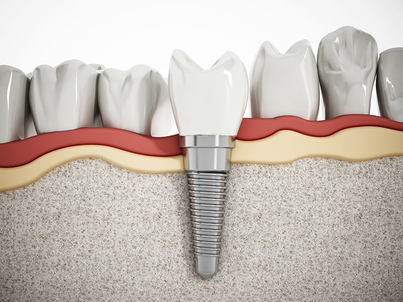 Introduction to Dental Implants | Dentist Butler PA