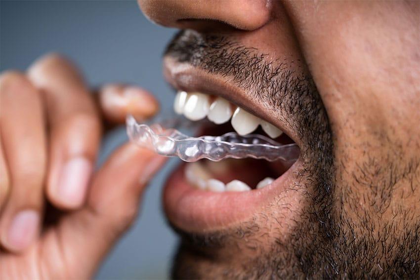 closeup of man putting in clear braces